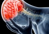 Know About a Brain Injury